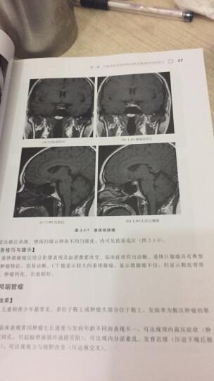 MRI诊断报告书写技巧 晒单图