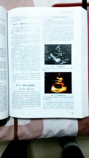 中华影像医学:超声诊断学卷(第2版) 晒单图