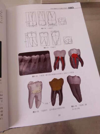 实用牙体牙髓病治疗学(第2版)(精) 晒单图