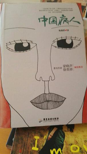 中国病人 晒单图