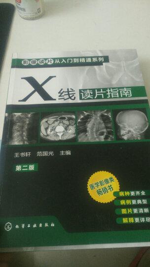 影像读片从入门到精通系列(第二版) --CT读片指南+MRI读片指南+X线读片指(第2版) 晒单图