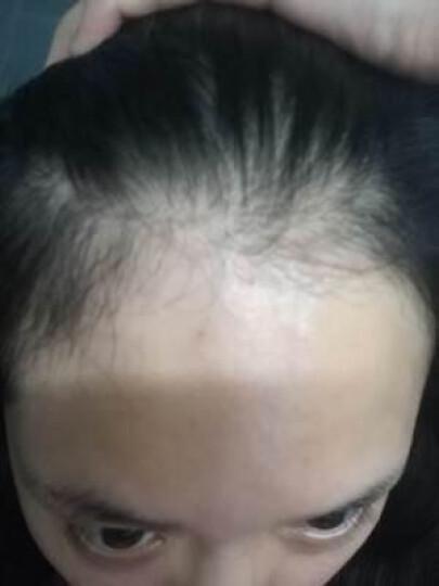 简美 【买二送一】生发液快速头发增长液男女防脱发增发密发头发育发变长发剂 15mL 晒单图