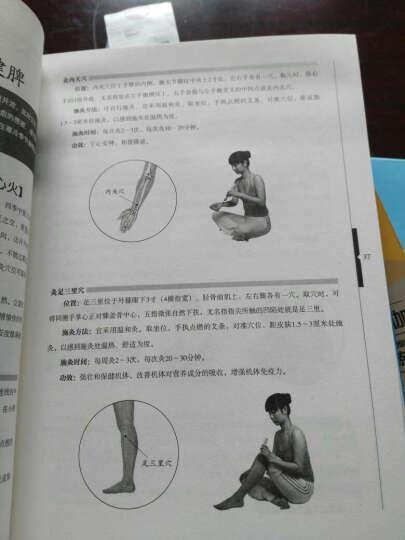 手到病自除(2):图解艾灸温养祛百病 晒单图