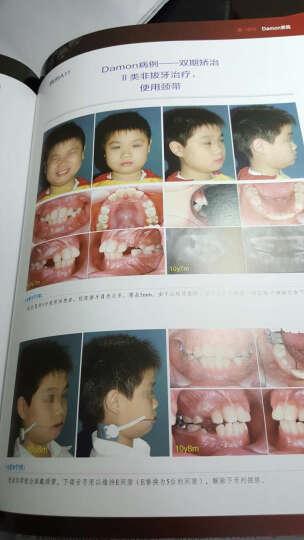 正畸临床创新:Damon系统联合种植支抗矫治疑难错牙合(第二版) 晒单图