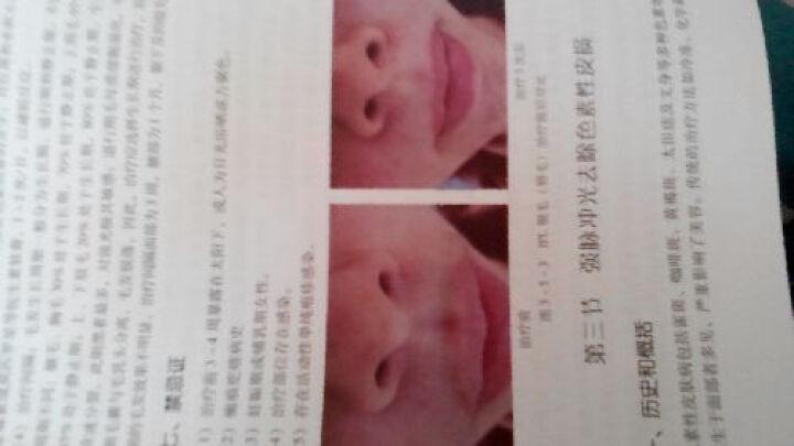 美容皮肤科/北京市医疗美容主诊医师培训教材 晒单图