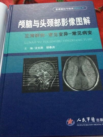 颅脑与头颈部影像图解.影像解剖与临床图解丛书 晒单图