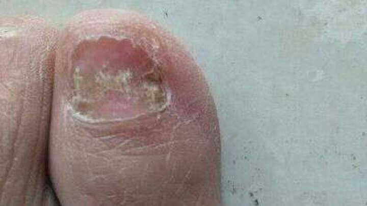 朝露 指甲舒甲修护精华液20ml 灰指甲修护亮甲脚趾甲手指甲部 促进美甲液去除软甲非药品 晒单图