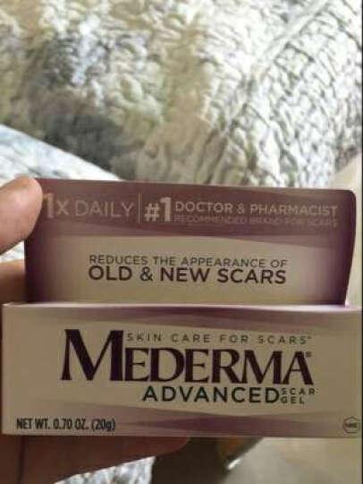 美德玛Mederma去疤痕膏 儿童烧烫伤疤平复去除淡化修复凝胶 产后修复膏祛新旧手术疤 儿童版 去疤痕凝胶膏  20g 晒单图