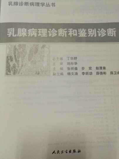 乳腺诊断病理学丛书:乳腺病理诊断和鉴别诊断 晒单图