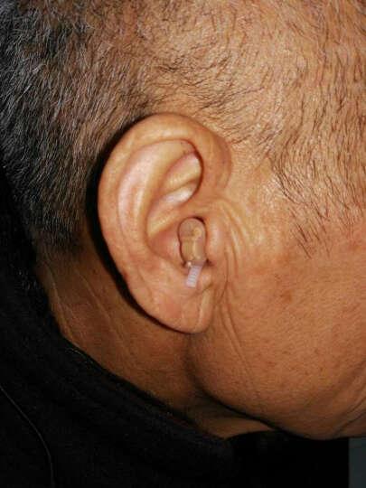 自然之声 6通道助听器老人无线隐形耳聋耳背老年听力下降老年人青年 6通道【右耳+电池+耳塞】 晒单图