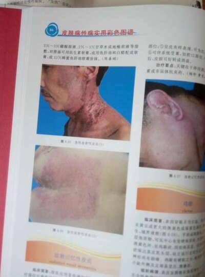 皮肤病性病实用彩色图谱 晒单图