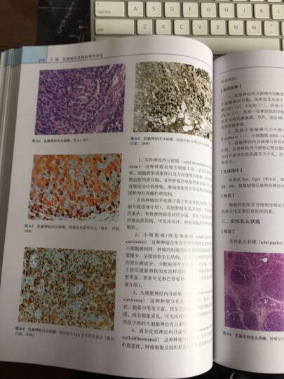 乳腺肿瘤临床病理学 晒单图