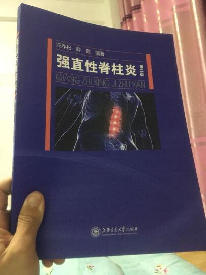 强直性脊柱炎(第二版) 晒单图