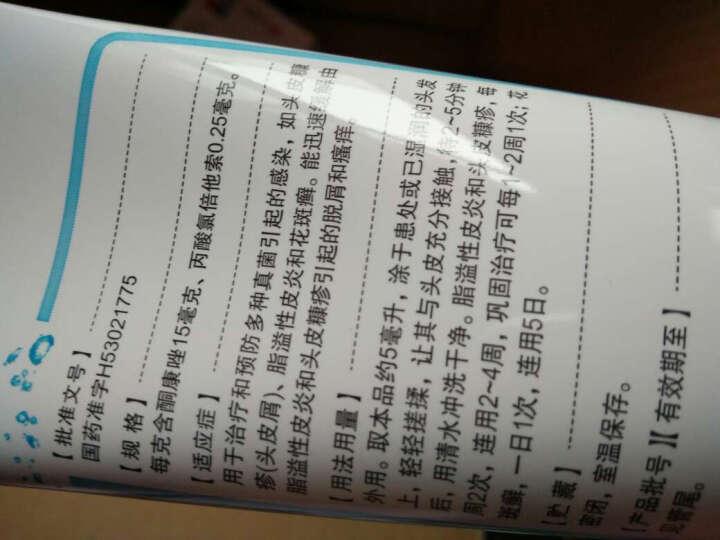 康王复方酮康唑发用洗剂 5ml(去屑止痒洗发水) 晒单图