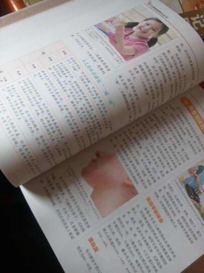 九种体质养生全书(超值全彩白金版) 晒单图