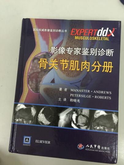 影像专家鉴别诊断骨关节肌肉分册:国际权威影像鉴别诊断丛书 晒单图