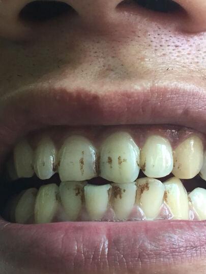 早安(morningsun) 洗牙粉45g去烟渍牙结石牙垢洁牙粉非牙齿美白牙膏白牙素 晒单图
