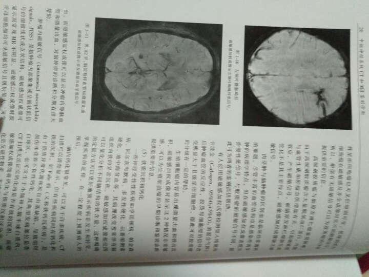 中枢神经系统CT和MR鉴别诊断-第3版 鱼博浪 晒单图
