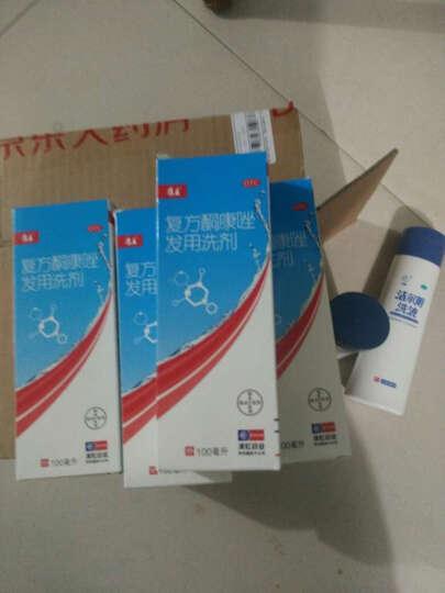 齐鲁 丁克 盐酸特比萘芬乳膏20g(手足癣股癣花斑癣治脚气) 晒单图
