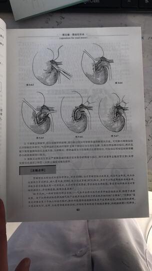 泌尿外科手术学(第3版) 晒单图
