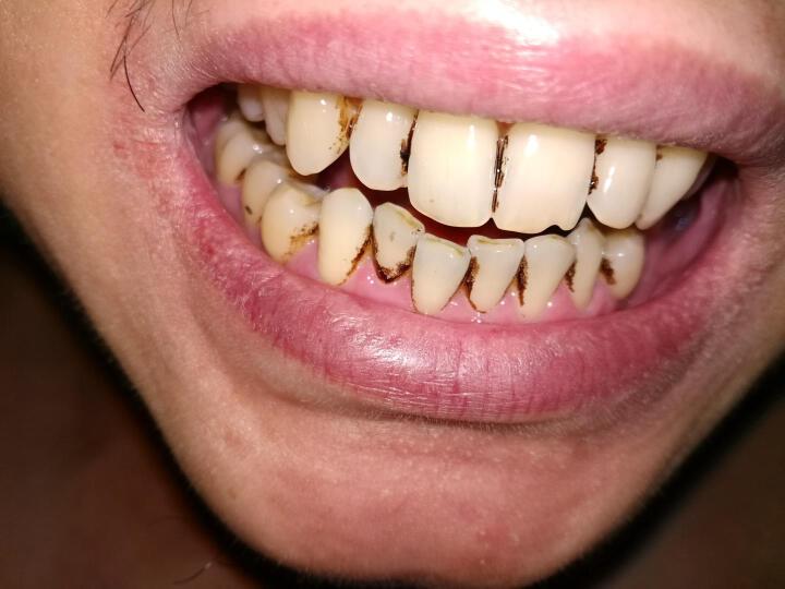 无水家用洗牙机超声波洁牙机 去除牙结石清除牙垢牙渍工具 超声波洗牙机+2套(工作尖G1+G2 尖头和宽头) 晒单图