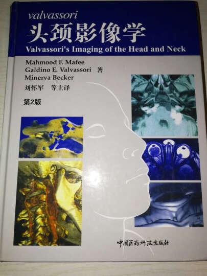 Valvassori头颈影像学(第2版) 晒单图