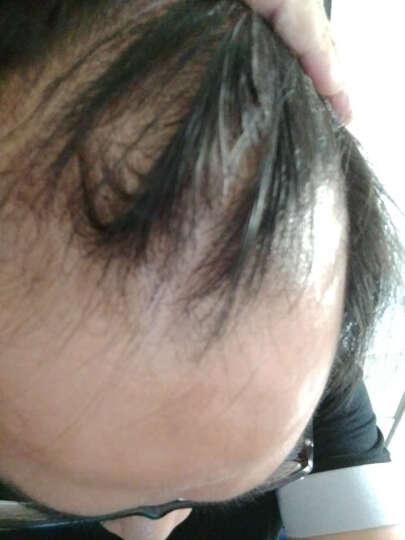 发雅丝(FAYASI) 姜医生防脱育发精华液男女生头发增长液增发密发长发剂生姜汁育发液 20ml育发液三支(一周期) 晒单图
