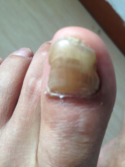 新滴甲康灰指甲抑菌护理液去除灰趾甲专用液 软甲清灰甲去灰甲净专用修复液一滴甲买二送一 16毫升装 晒单图