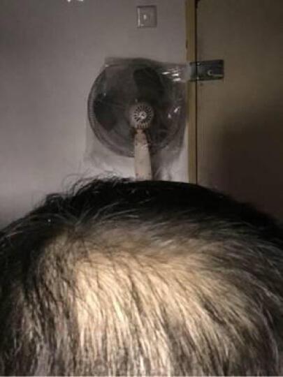 博士伦 米诺地尔凝胶 40g:0.88g(防脱发 治疗脱发 脂溢性脱发) 晒单图
