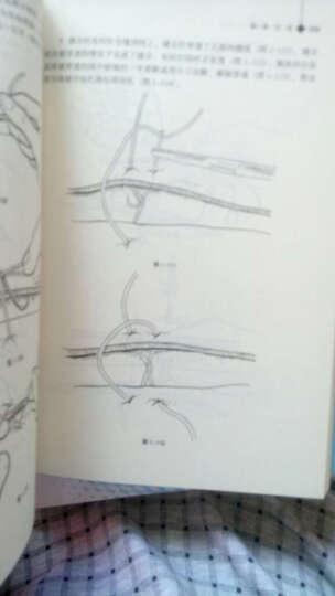 高等医学院校教材:外科手术学基础(第2版) 晒单图