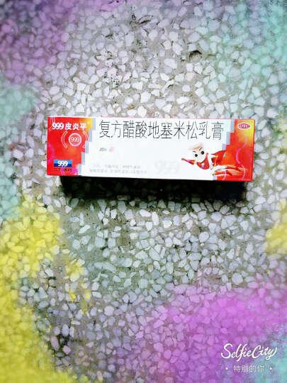 999(三九) 盐酸特比萘芬乳膏1% 15g(手足癣股癣花斑癣治脚气) 晒单图