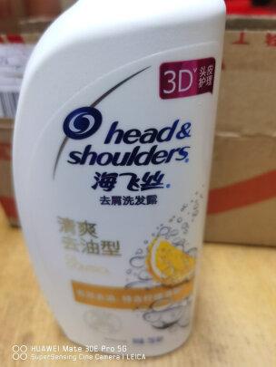 双眼皮手术北京哪家做得好-双眼皮手术北京哪家好